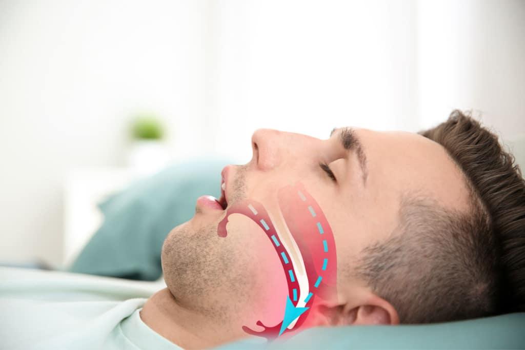 Fioritto Family Dental Sleep Support