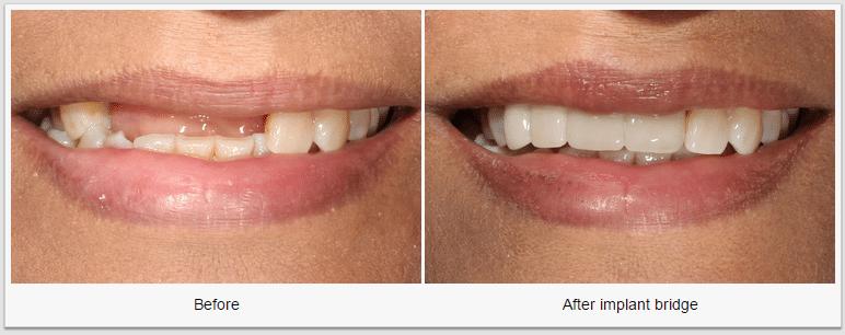 implant bridge dental implants