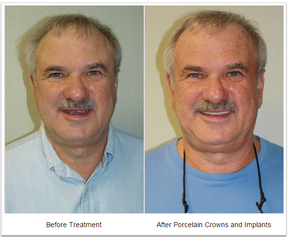 Porcelain crowns and implants - Fioritto Family Dental