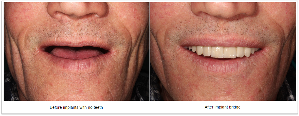 Implant bridge - Fioritto Family Dental