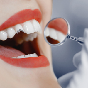 cracked tooth dentist