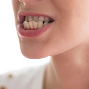 Periodontics Fioritto Family Dental