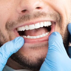 Dentist Mentor OH