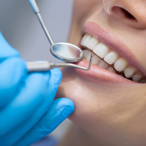 dental exam and cleaning