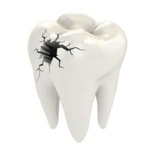 Endodontics Fioritto Family Dental